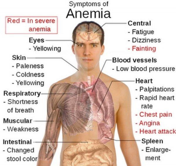 anemia_simptome